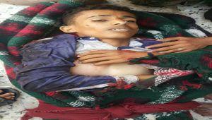مليشيا الحوثي ترتكب مجزرة بحق صحفيين في تعز