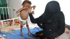 مركز جلوبل ريسرش: واشنطن وحلفائها شنوا حربا بيولوجية في اليمن والسعودية تسيطر على الهواء