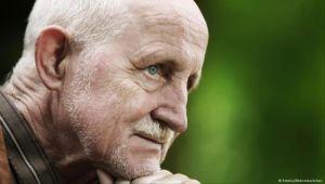 ما أسباب الشيخوخة المبكرة؟