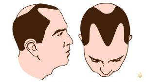 دراسة جديدة تبشر بعلاج تساقط الشعر