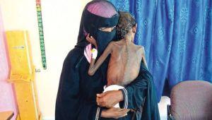 مسؤول في أطباء بلا حدود يكتب: هذه المعضلات التي نواجهها في اليمن (ترجمة خاصة)