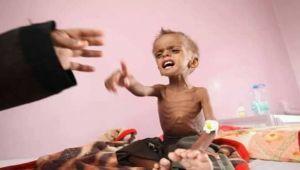 """منظمة العمل ضد الجوع: 240 ألف يمني يعانون من نقص الغذاء """"الشديد"""""""