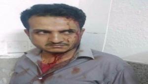 ردود منددة بعد اعتداء مشرف حوثي على طبيب في مستشفى الثورة بصنعاء