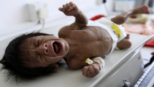 Millions in war-torn Yemen to face shortage of life-saving medicines, food on dearth of funds
