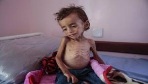 """""""أسوشيتد برس"""" تكشف عن دعم الأمم المتحدة للحوثيين وعرقلة الأخيرين لتدفق المساعدات (ترجمة خاصة)"""