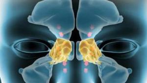 التهاب الجيوب الأنفية.. الأنواع والأعراض والعلاج