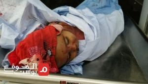 مقتل طفلتين وإصابة ثلاثة مدنيين بقصف حوثي في تعز