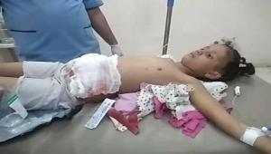 إصابة طفلة برصاص قناص حوثي في تعز