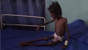 الفاينانشال تايمز: إدارة ترامب تدفع اليمن إلى المجاعة