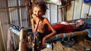 برنامج الغذاء يحذر من ذهاب 16 مليون يمني نحو المجاعة