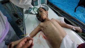 الأمم المتحدة: أكثر من 2500 طفل قتل أو تشوه بسبب الحرب في اليمن خلال العامين الماضيين