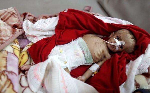 شاهد صور مرعبة لأطفال يمنيين يعانون من سوء التغذية