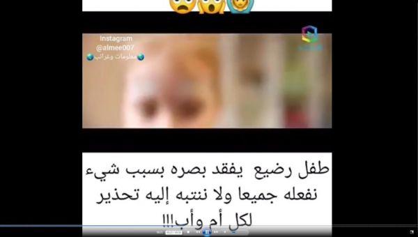 هل يؤدي فلاش الكاميرا إلى إصابة الطفل بالعمى؟