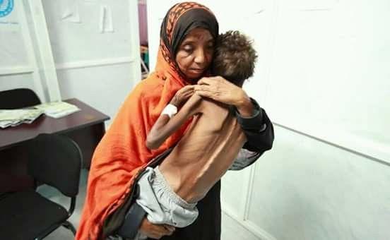 اليمن البلد الأكثر معاناة من الجوع.. - تقارير دولية: 10بالمئة من سكان الأرض يعانون من الجوع