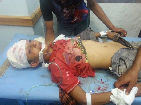 مقتل امرأة وطفلها وإصابة 16 مدنيا بقصف حوثي على حي سكني بتعز