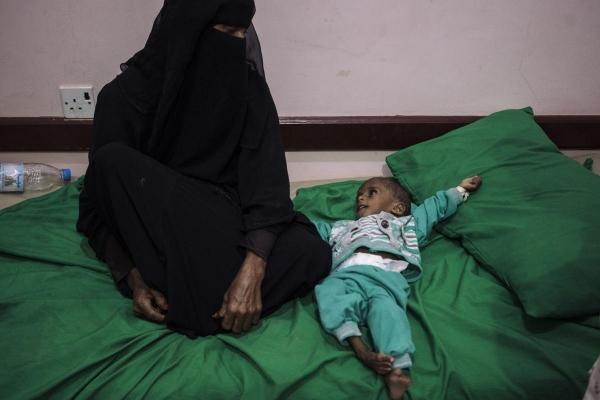 جماعات يمنية تطالب برنامج الغذاء العالمي بالكشف عن