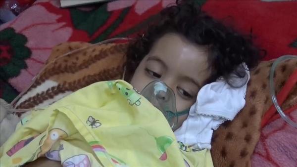 تدشين حملة تطعيم ضد الحصبة تستهدف 13 مليون طفل يمني