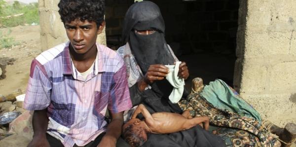 شركة أسلحة بريطانية تحتفل بأرباحها مع تجويع وقتل اليمن (ترجمة خاصة)
