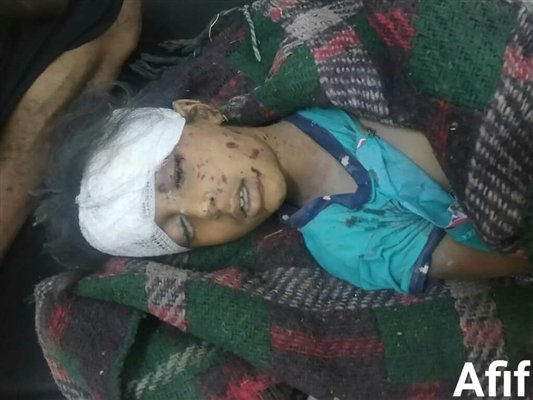 تعز.. مقتل فتاتين وإصابة والدتهما في قصف حوثي