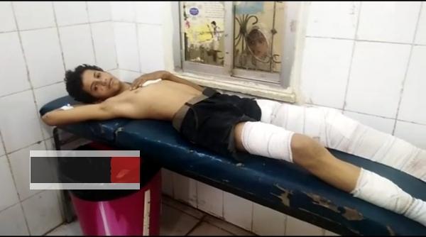 الضالع.. إصابة أربعة أطفال بقصف حوثي استهدف منزلا في قعطبة