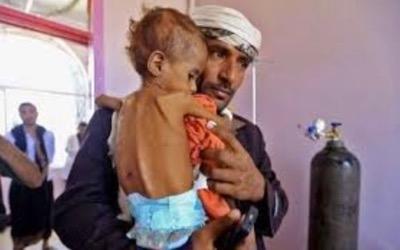 الصحة العالمية: 15 ألف طفل يمني يعانون من سوء التغذية الحاد الوخيم
