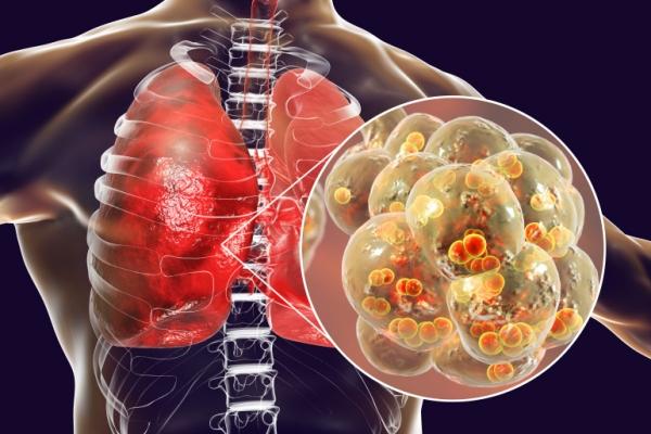 الأولى في أميركا.. نجاح عملية لزراعة رئتين لمصابة بفيروس كورونا