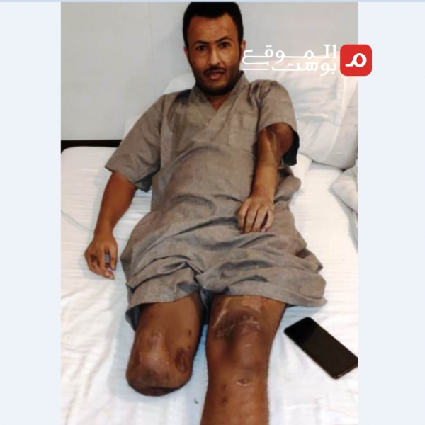 تنكرت لهم السعودية وخذلهم قادتهم ووزارة الدفاع اليمنية - أسر قتلى وجرحى المقاتلين مع السعودية يعانون الألم والخذلان (تحقيق)