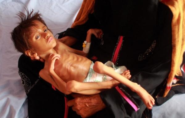 لجنة دولية تحذر من ارتفاع معدل المجاعة في اليمن مع تدهور العملة