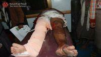 قتلى من الحوثيين في تعز والجيش يمشط باب المندب لنزع الالغام