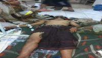 تعز: مليشيا الحوثي تقصف احياء المدينة وغارات التحالف تستهدف مواقعها