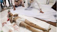 تعز تدفع ضريبة مواجهة مشروع الحوثي لتدمير اليمن (تقرير)
