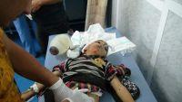 مجزرة جديدة ترتكبها مليشيات الحوثي وصالح بتعز بينها نساء (صور- فيديو)