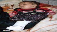 إب : إصابة طفلة نازحة بطلق ناري في ظل فلتان أمني كبير تشهده المحافظة