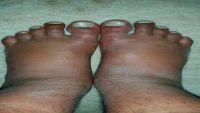 العمري.. ضحية جديدة للتعذيب في سجون المليشيا
