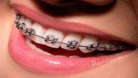 إلى مرضى تقويم الأسنان.. تجنبوا هذه الأطعمة والعادات!