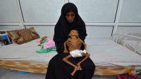 الحديدة من مدينة اقتصادية الى عاصمة للجوع في اليمن  (استطلاع خاص)