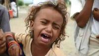 حجة .. نصف مليون نازح بين براثن الجوع والمرض و150 ألف طفل يصارعون سوء التغذية (تقرير)