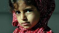 """""""جانا"""".. طفلة يمنية فقدت ابتسامتها في اليمن وأعادها مستشفى بتركيا"""
