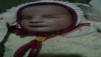 في طفرة خُلقية هي الأولى من نوعها.. ولادة طفلة في تعز فاقدةً للعيون (صورة)