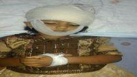تعز.. استشهاد طفلة برصاص قناصة مليشيا الحوثي في الكدحة