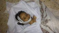 إب.. امرأة تقتل ابنة زوجها الطفلة بطريقة بشعة (صور)