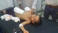 تعز.. استشهاد تسعة مدنيين وجرح 23 آخرين بينهم أطفال منذ بداية رمضان