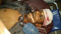 حضرموت.. جندي يطلق النار على عامل نظافة ويرديه قتيلاً (صورة)