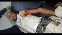 الضالع.. نجاة قيادي في المقاومة الشعبية من محاولة اغتيال