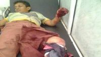 الضالع: إصابة مواطن بقصف للمليشيا على قرى مريس
