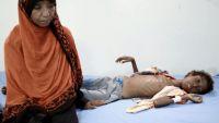 الصحة العالمية تخطط لحرب على الكوليرا باليمن