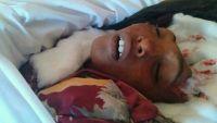 الجوف.. مقتل طفل بقصف للحوثيين على مدينة الحزم
