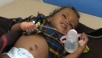 الاعلام الدولي يسلط الضوء على الوضع الانساني في اليمن بعد إغلاق المنافذ: ضحايا بالملايين