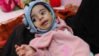 """""""الجارديان"""" تُسلط الضوء على الوضع الإنساني في اليمن بعد إغلاق المنافذ اليمنية (ترجمة خاصة)"""