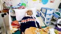 اليمن يشهد أول عُرس لمرضى السرطان رغم الحرب